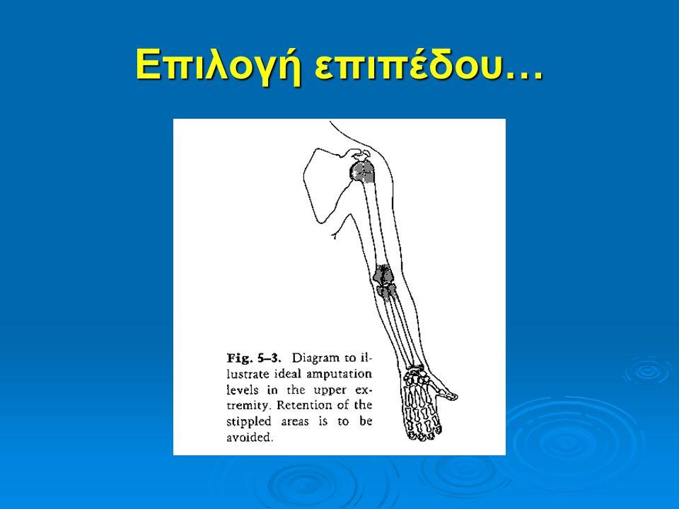 Κολοβώματα χεριού…(τραύμα)  Άλλοι παράγοντες: - Απόλυτη λειτουργία του τμήματος - Ανάλυση 5 περιοχών ιστών (δέρμα, τένοντες, νεύρα, οστά και αρθρώσεις) εάν τα 3/5 χρειάζονται μεγάλη αναδόμηση πρέπει να επιλεγεί το κολόβωμα… εάν τα 3/5 χρειάζονται μεγάλη αναδόμηση πρέπει να επιλεγεί το κολόβωμα…