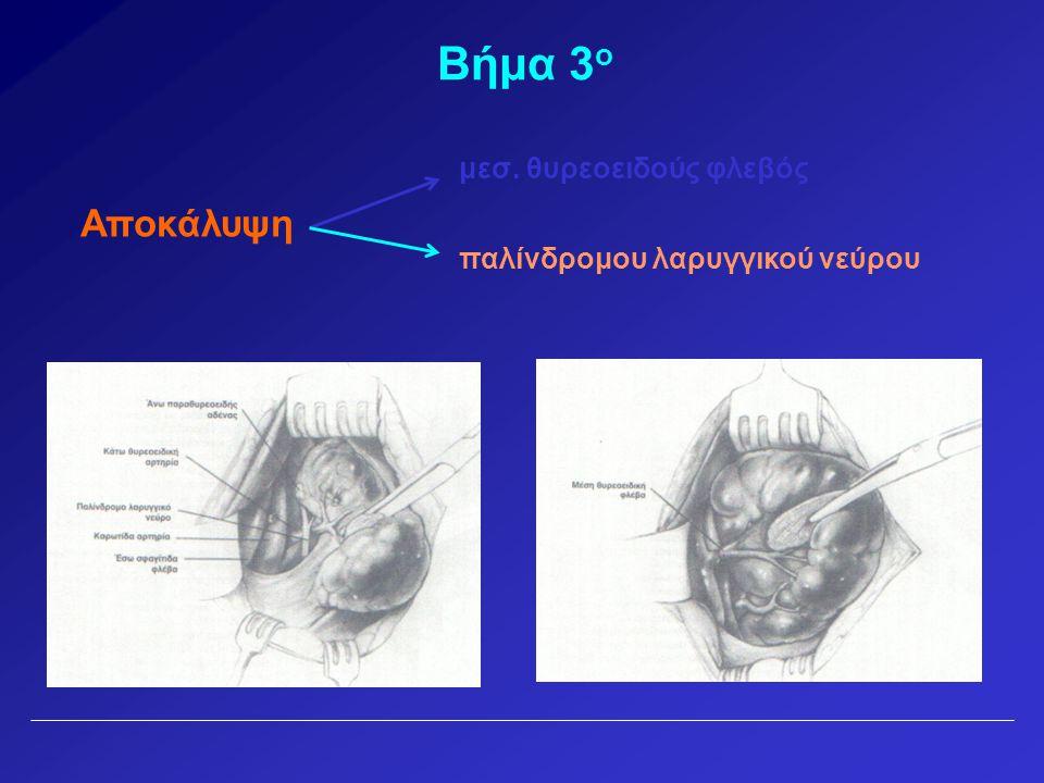 Βήμα 3 ο Αποκάλυψη μεσ. θυρεοειδούς φλεβός παλίνδρομου λαρυγγικού νεύρου