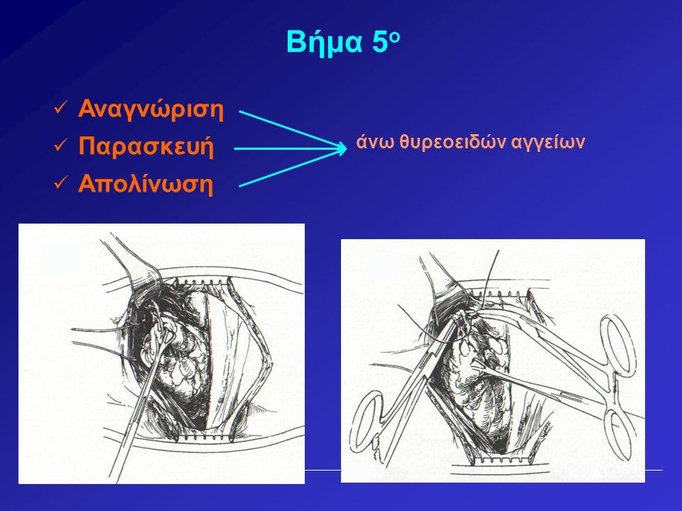 Βήμα 5 ο  Αναγνώριση άνω θυρεοειδών αγγείων  Παρασκευή  Απολίνωση