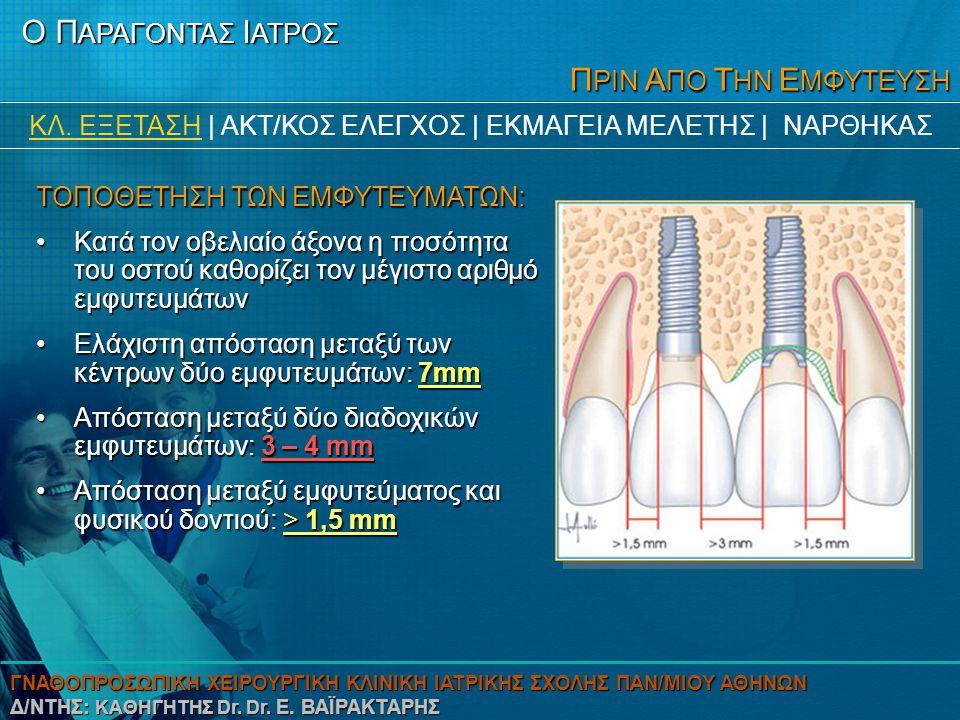 Π ΡΙΝ Α ΠΟ Τ ΗΝ Ε ΜΦΥΤΕΥΣΗ Το ύψος του οστού κατατάσσεται σε 5 τύπους κατά Lekholm και Zarb: •Τύπος Α: η ακρολοφία είναι άθικτη, •Τύπος Β: υπάρχει ελάχιστη απορρόφηση, •Τύπος C: εμφανίζεται προχωρημένη απορρόφηση που φθάνει μέχρι τη βάση των φατνίων, •Τύπος D: αρχίζει να απορροφάται οστούν και στη βάση των φατνίων •Τύπος Ε: η απορρόφηση είναι πολύ προχωρημένη και φθάνει ως τη βάση του φατνίου Ο Π ΑΡΑΓΟΝΤΑΣ Ι ΑΤΡΟΣ ΚΛ.
