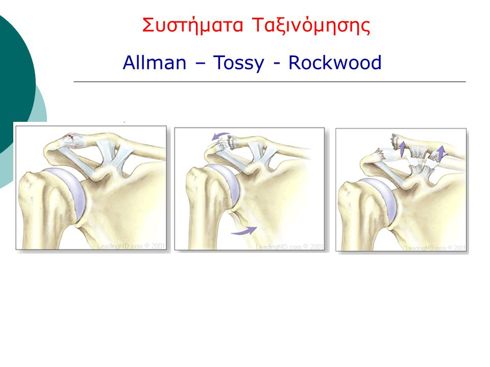 Allman – Tossy - Rockwood Συστήματα Ταξινόμησης