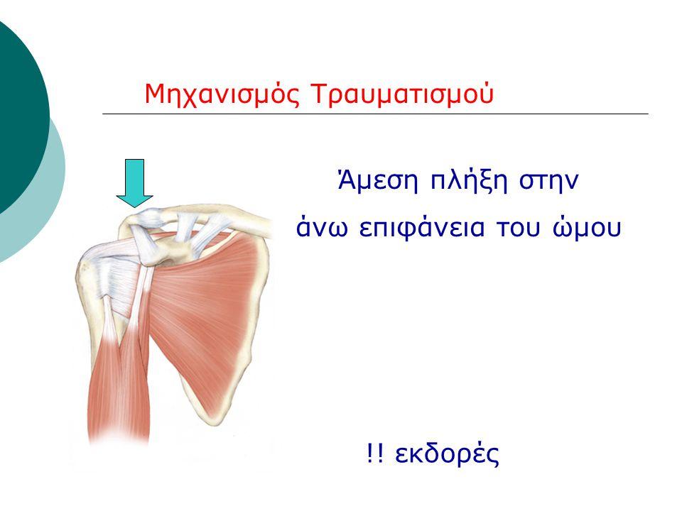 Μηχανισμός Τραυματισμού Άμεση πλήξη στην άνω επιφάνεια του ώμου !! εκδορές