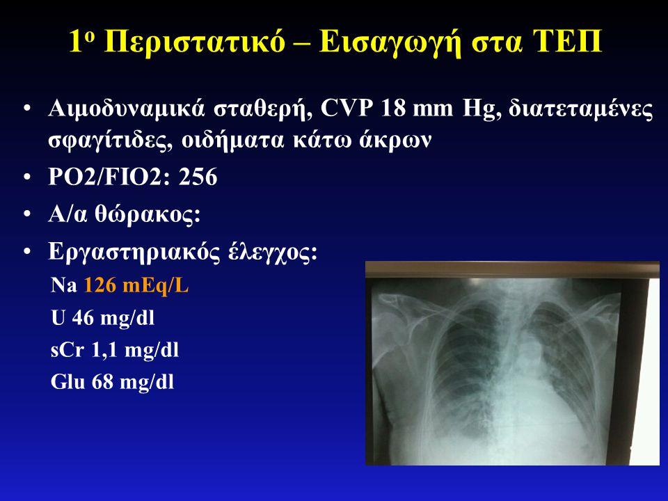 1 ο Περιστατικό – Εισαγωγή στα ΤΕΠ •Αιμοδυναμικά σταθερή, CVP 18 mm Hg, διατεταμένες σφαγίτιδες, οιδήματα κάτω άκρων •PO2/FIO2: 256 •Α/α θώρακος: •Εργ