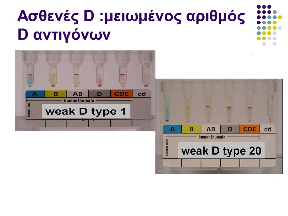 Ασθενές D :μειωμένος αριθμός D αντιγόνων