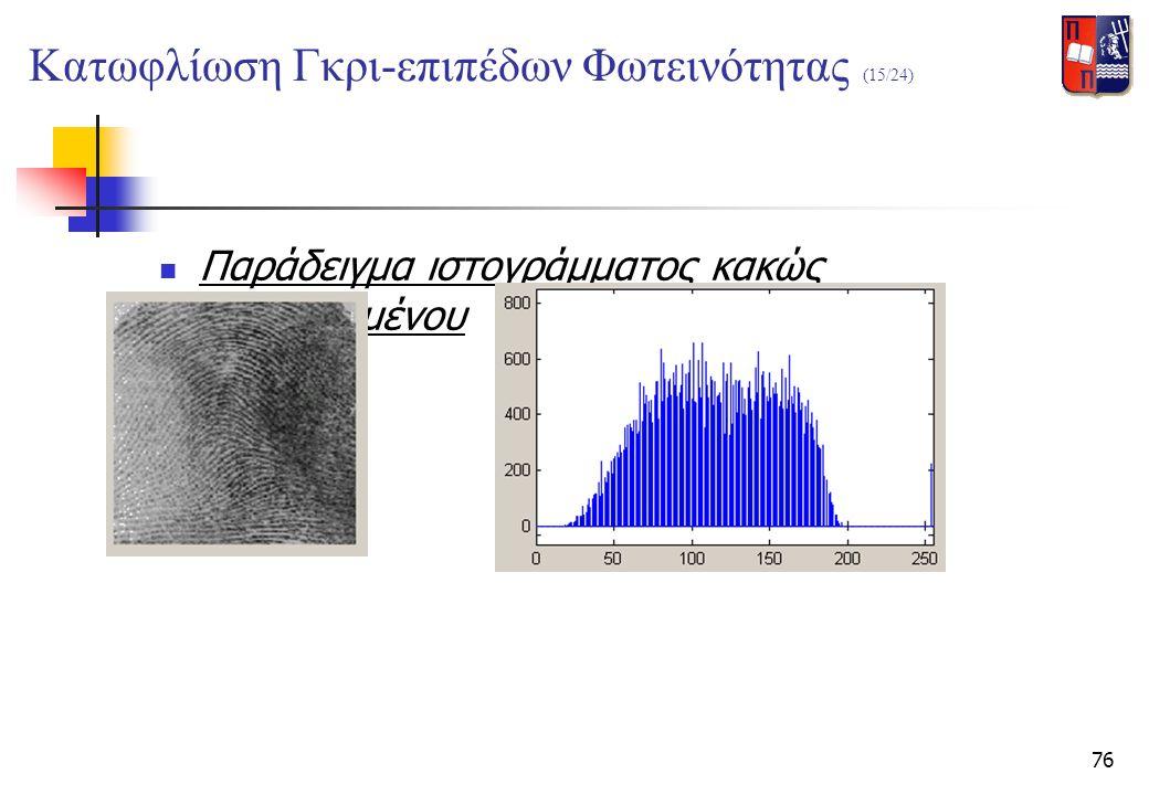 76  Παράδειγμα ιστογράμματος κακώς διαχωρισμένου Κατωφλίωση Γκρι-επιπέδων Φωτεινότητας (15/24)