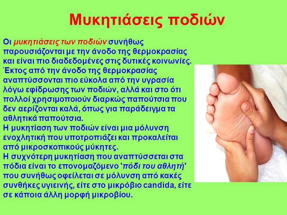 Μυκητιάσεις ποδιών Οι μυκητιάσεις των ποδιών συνήθως παρουσιάζονται με την άνοδο της θερμοκρασίας και είναι πιο διαδεδομένες στις δυτικές κοινωνίες. Έ