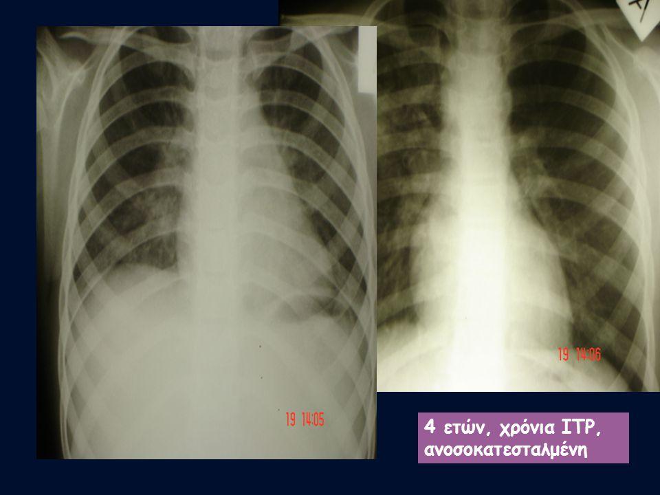 7 παιδιά Μέση ηλικία: 6,5 έτη Μέση διάρκεια νοσηλείας: 7 ημέρες Τελική έκβαση: πλήρης ίαση Παράγοντες κινδύνου: 2 παιδιά Επιπλοκή-πνευμονία 13 ετών, Ι
