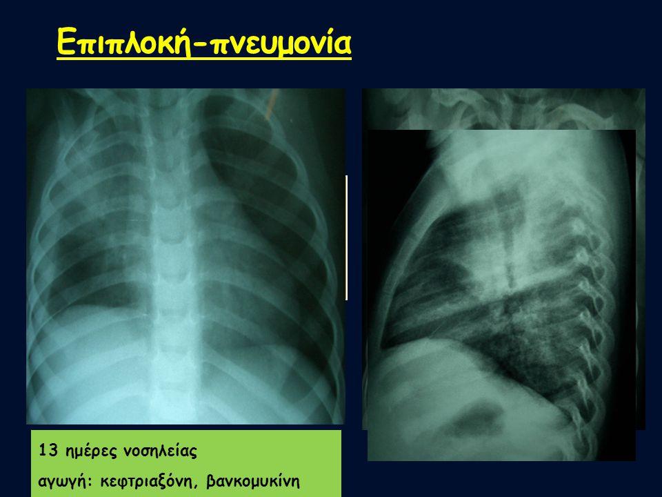 Επιπλοκή-πνευμονία Ενδείξεις μικροβιακής πνευμονίας βάση του Ε/Ε: 1 παιδί 2,5 ετών θήλυ,ελεύθερο αναμνηστικό, επηρρεασμένη γενική κατάσταση, WBC=19500