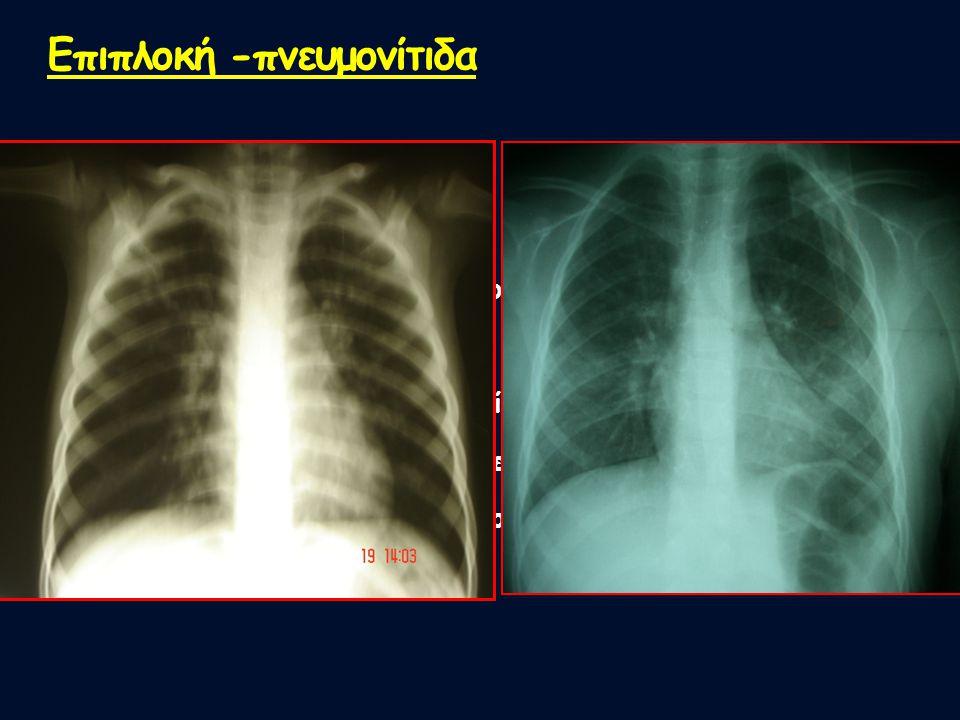 3 παιδιά Μέση ηλικία: 5,5 έτη Μέση διάρκεια νοσηλείας: 4 ημέρες Ανάγκες σε Ο2: 2 ημέρες Υποκείμενο νόσημα (ΒΑ): 1 παιδί 7 ετών Αγωγή: εισπνεόμενοι β2