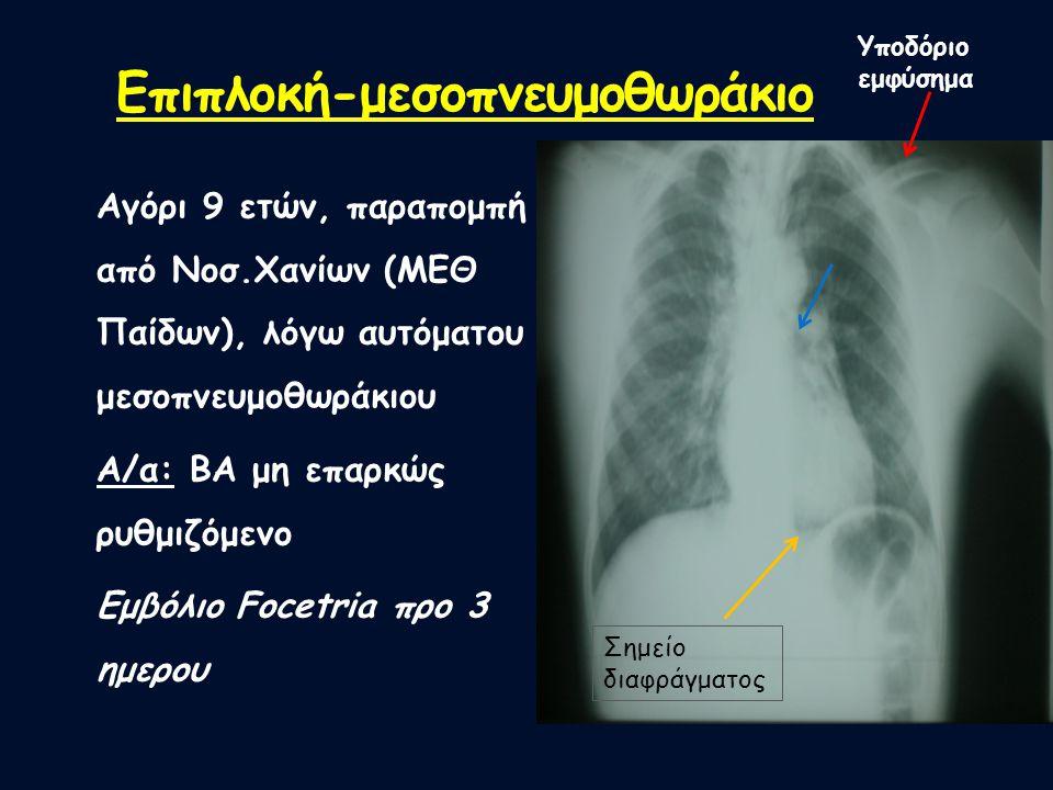 Επιπλοκή-μεσοπνευμοθωράκιο Αγόρι 9 ετών, παραπομπή από Νοσ.Χανίων (ΜΕΘ Παίδων), λόγω αυτόματου μεσοπνευμοθωράκιου Α/α: BA μη επαρκώς ρυθμιζόμενο Εμβόλ