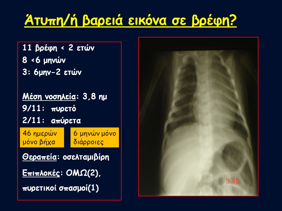 Άτυπη/ή βαρειά εικόνα σε βρέφη? 11 βρέφη < 2 ετών 8 <6 μηνών 3: 6μην-2 ετών Μέση νοσηλεία: 3,8 ημ 9/11: πυρετό 2/11: απύρετα Θεραπεία: οσελταμιβίρη Επ
