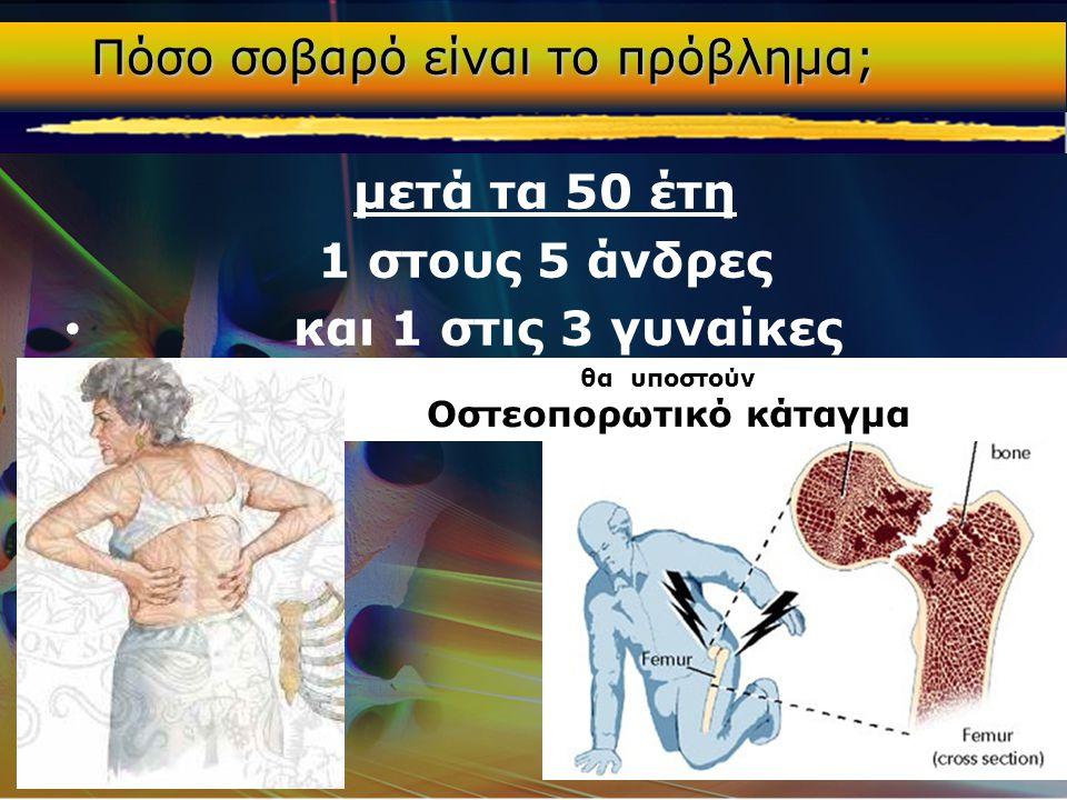μετά τα 50 έτη 1 στους 5 άνδρες • και 1 στις 3 γυναίκες θα υποστούν Οστεοπορωτικό κάταγμα