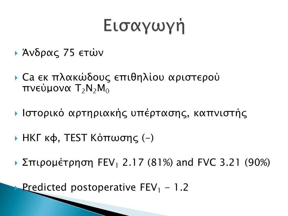  Άνδρας 75 ετών  Ca εκ πλακώδους επιθηλίου αριστερού πνεύμονα T 2 N 2 M 0  Ιστορικό αρτηριακής υπέρτασης, καπνιστής  ΗΚΓ κφ, TEST Κόπωσης (-)  Σπιρομέτρηση FEV 1 2.17 (81%) and FVC 3.21 (90%)  Predicted postoperative FEV 1 - 1.2