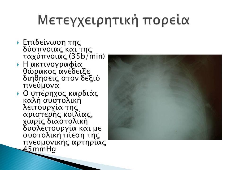  Επιδείνωση της δύσπνοιας και της ταχύπνοιας (35b/min)  Η ακτινογραφία θώρακος ανέδειξε διηθήσεις στον δεξιό πνεύμονα  Ο υπέρηχος καρδιάς καλή συστολική λειτουργία της αριστερής κοιλίας, χωρίς διαστολική δυσλειτουργία και με συστολική πίεση της πνευμονικής αρτηρίας 45mmHg