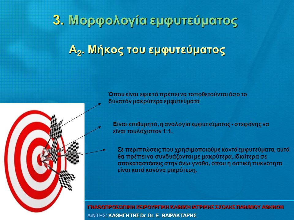 3. Μορφολογία εμφυτεύματος Α 2. Μήκος του εμφυτεύματος Όπου είναι εφικτό πρέπει να τοποθετούνται όσο το δυνατόν μακρύτερα εμφυτεύματα Είναι επιθυμητό,