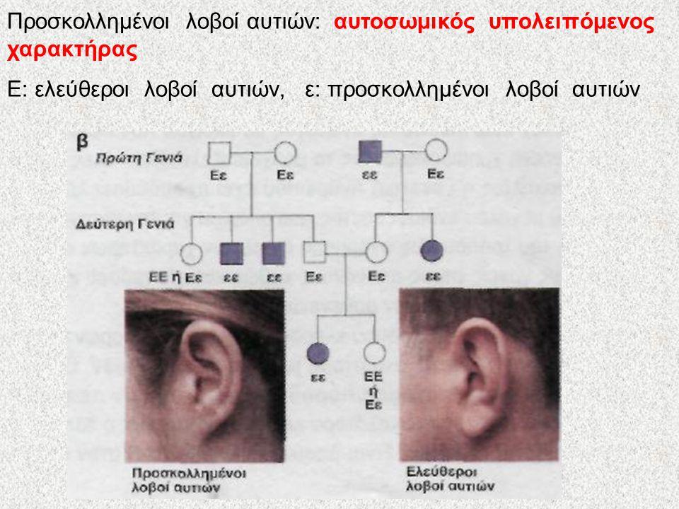 Προσκολλημένοι λοβοί αυτιών: αυτοσωμικός υπολειπόμενος χαρακτήρας Ε: ελεύθεροι λοβοί αυτιών, ε: προσκολλημένοι λοβοί αυτιών