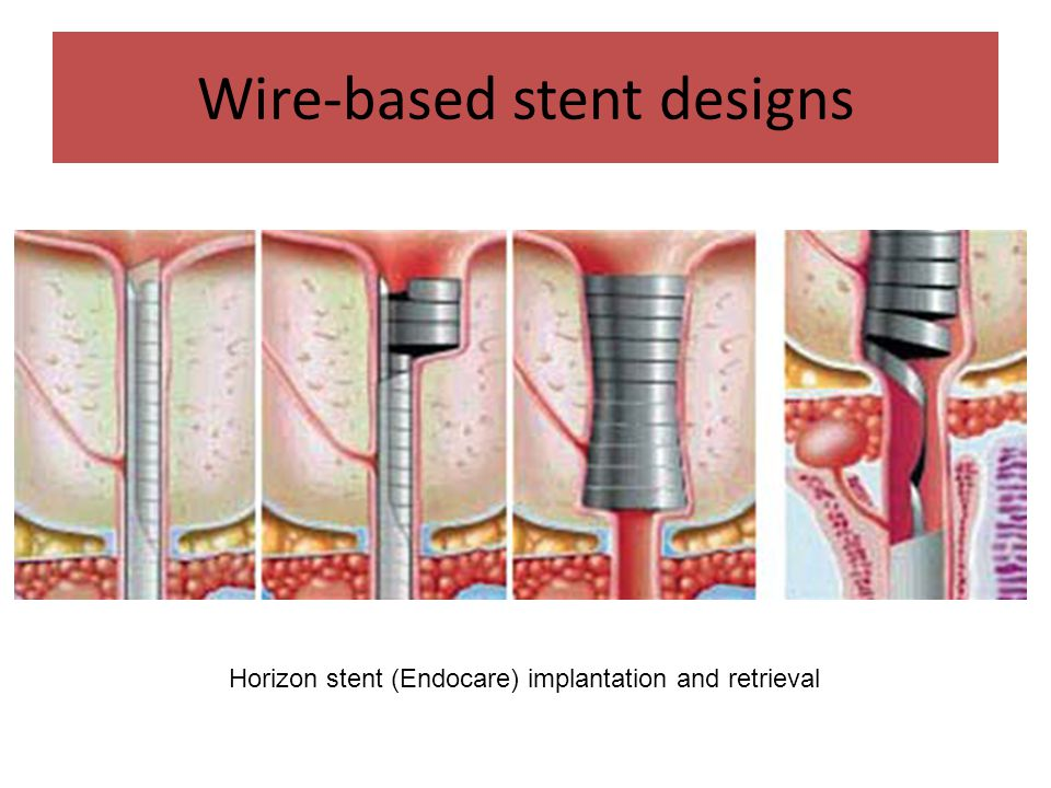 Wire-based stent designs Horizon stent (Endocare) implantation and retrieval