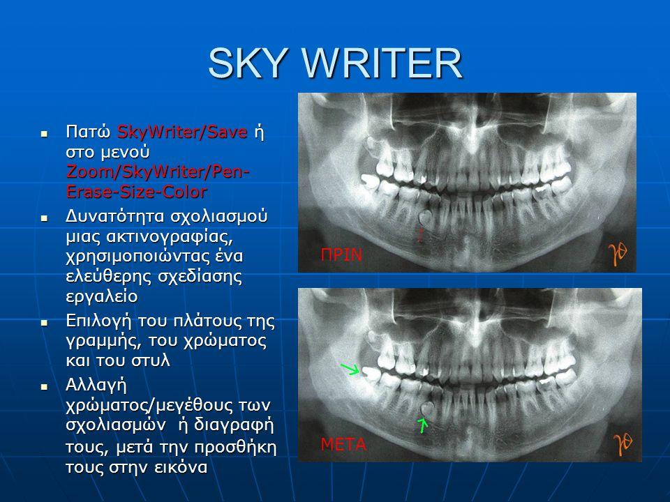 SKY WRITER  Πατώ SkyWriter/Save ή στο μενού Zoom/SkyWriter/Pen- Erase-Size-Color  Δυνατότητα σχολιασμού μιας ακτινογραφίας, χρησιμοποιώντας ένα ελεύ
