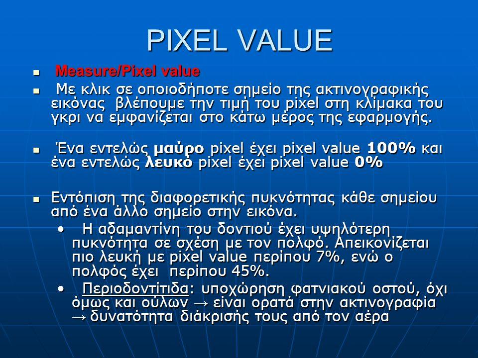 PIXEL VALUE  Measure/Pixel value  Με κλικ σε οποιοδήποτε σημείο της ακτινογραφικής εικόνας βλέπουμε την τιμή του pixel στη κλίμακα του γκρι να εμφαν