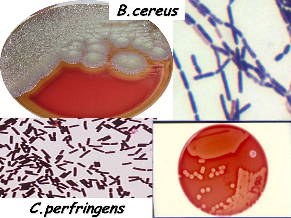 Μορφολογία αποικίας στο θρεπτικό υλικό Μορφολογία αποικίας στο θρεπτικό υλικό Μικροσκοπική εξέταση μορφολογίας μικροβίου (Gram χρώση) Προκαταρκτική τα