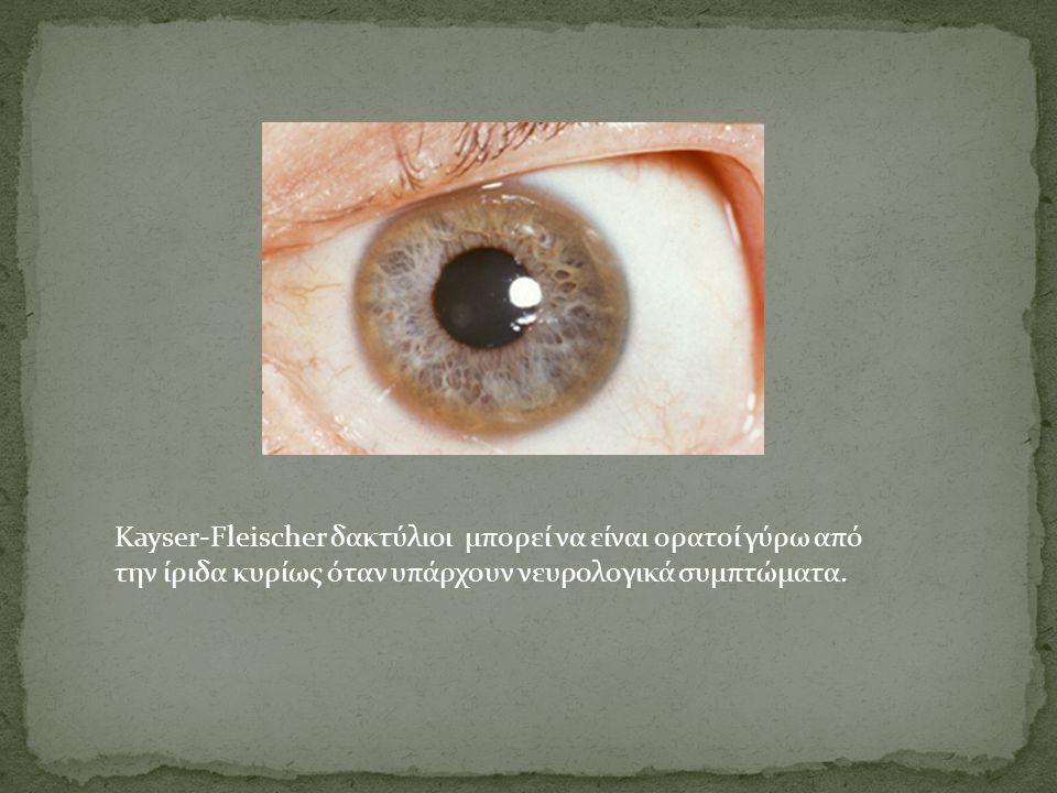 Kayser-Fleischer δακτύλιοι μπορεί να είναι ορατοί γύρω από την ίριδα κυρίως όταν υπάρχουν νευρολογικά συμπτώματα.