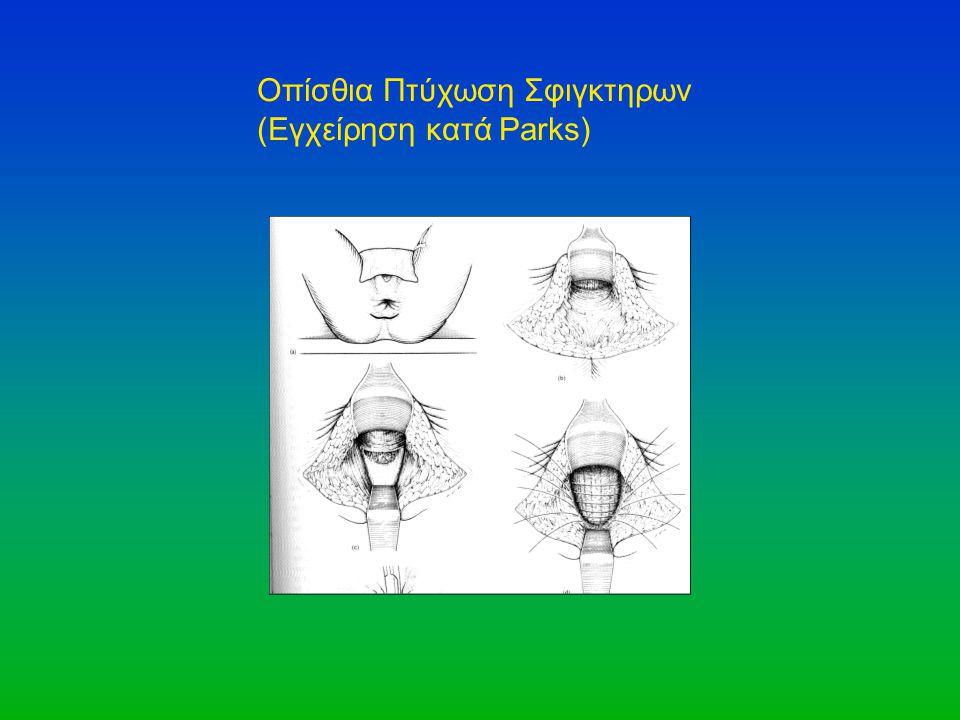 Οπίσθια Πτύχωση Σφιγκτηρων (Εγχείρηση κατά Parks)