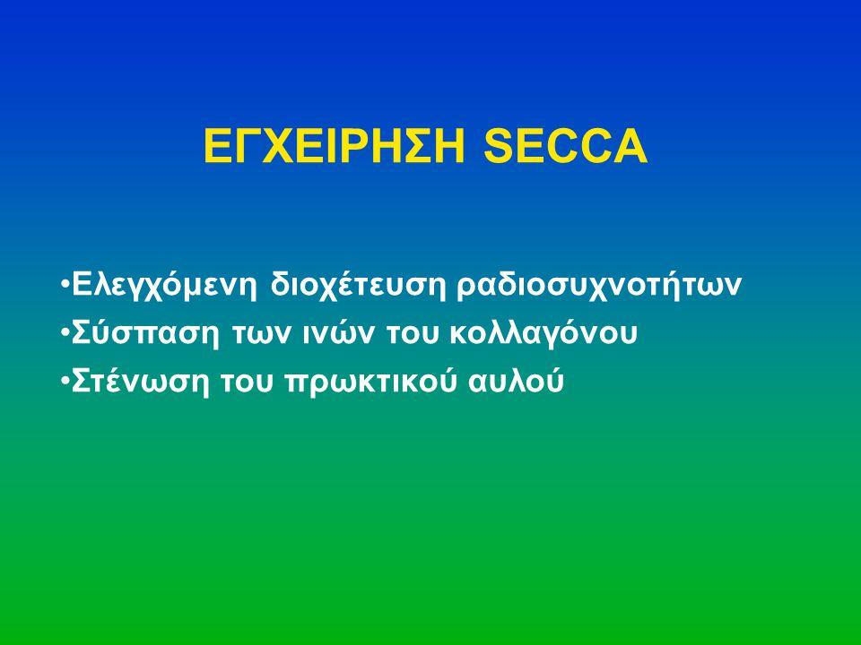 ΕΓΧΕΙΡΗΣΗ SECCA •Ελεγχόμενη διοχέτευση ραδιοσυχνοτήτων •Σύσπαση των ινών του κολλαγόνου •Στένωση του πρωκτικού αυλού