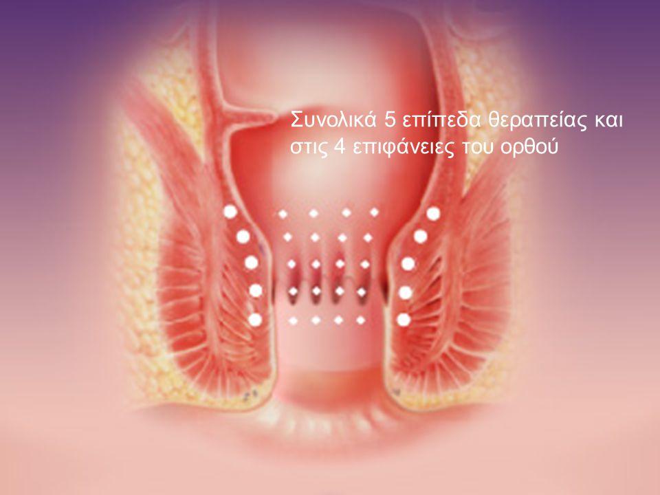 Συνολικά 5 επίπεδα θεραπείας και στις 4 επιφάνειες του ορθού