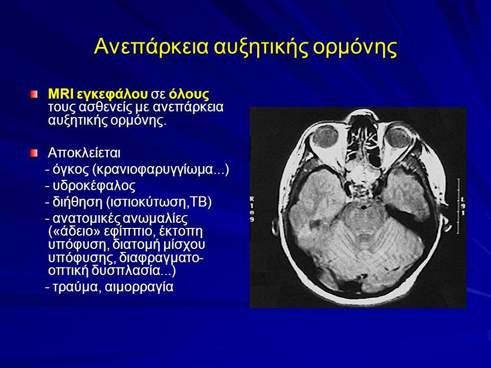 Ανεπάρκεια αυξητικής ορμόνης MRI εγκεφάλου σε όλους τους ασθενείς με ανεπάρκεια αυξητικής ορμόνης.