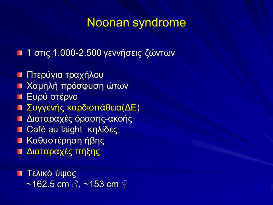 Noonan syndrome 1 στις 1.000-2.500 γεννήσεις ζώντων Πτερύγια τραχήλου Χαμηλή πρόσφυση ώτων Ευρύ στέρνο Συγγενής καρδιοπάθεια(ΔΕ) Διαταραχές όρασης-ακοής Café au laight κηλίδες Καθυστέρηση ήβης Διαταραχές πήξης Τελικό ύψος ~162.5 cm ♂, ~153 cm ♀ ~162.5 cm ♂, ~153 cm ♀