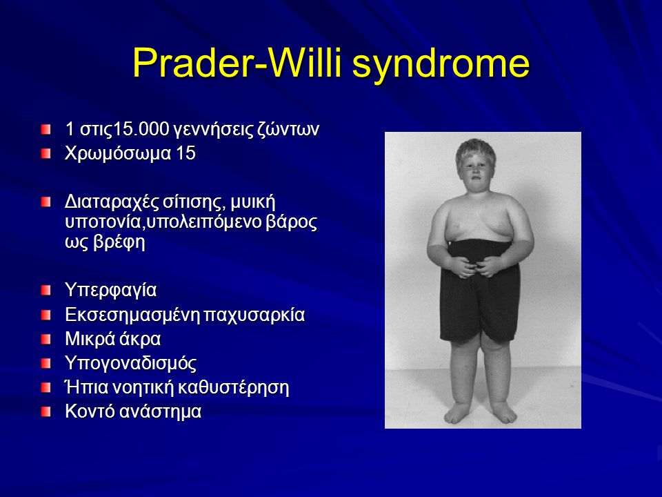 Prader-Willi syndrome 1 στις15.000 γεννήσεις ζώντων Χρωμόσωμα 15 Διαταραχές σίτισης, μυική υποτονία,υπολειπόμενο βάρος ως βρέφη Υπερφαγία Εκσεσημασμένη παχυσαρκία Μικρά άκρα Υπογοναδισμός Ήπια νοητική καθυστέρηση Κοντό ανάστημα
