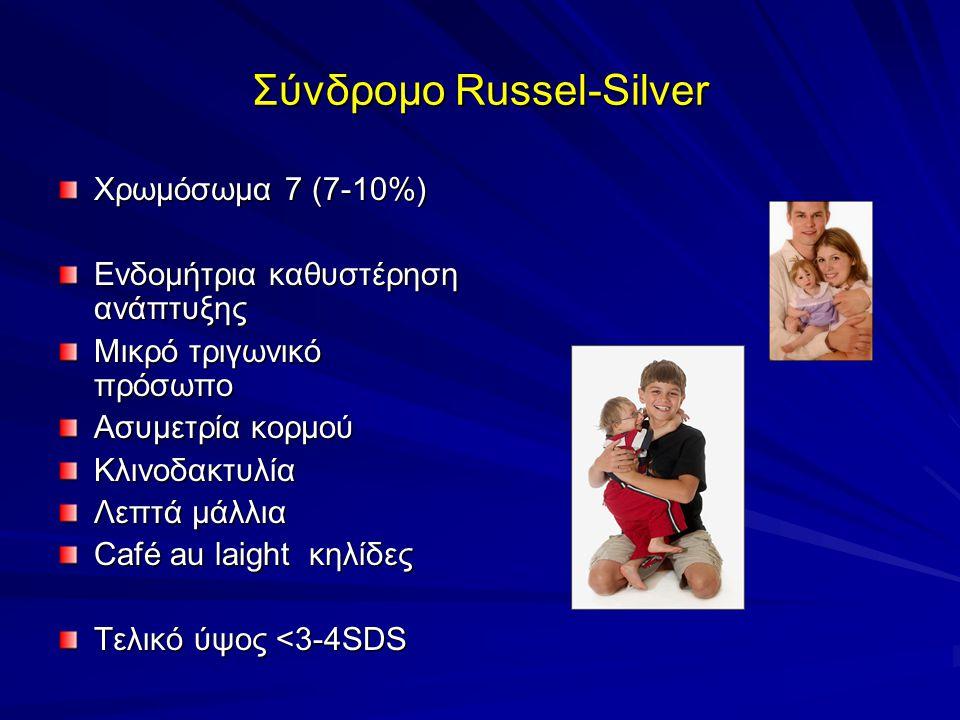 Σύνδρομο Russel-Silver Χρωμόσωμα 7 (7-10%) Ενδομήτρια καθυστέρηση ανάπτυξης Μικρό τριγωνικό πρόσωπο Ασυμετρία κορμού Κλινοδακτυλία Λεπτά μάλλια Café au laight κηλίδες Τελικό ύψος <3-4SDS