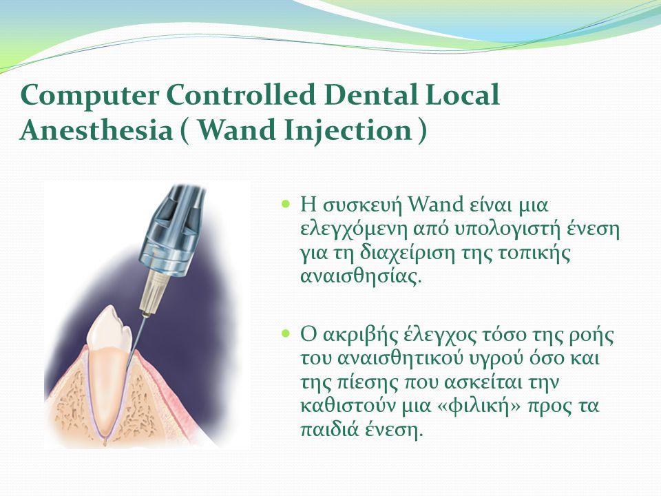  Η συσκευή Wand είναι μια ελεγχόμενη από υπολογιστή ένεση για τη διαχείριση της τοπικής αναισθησίας.