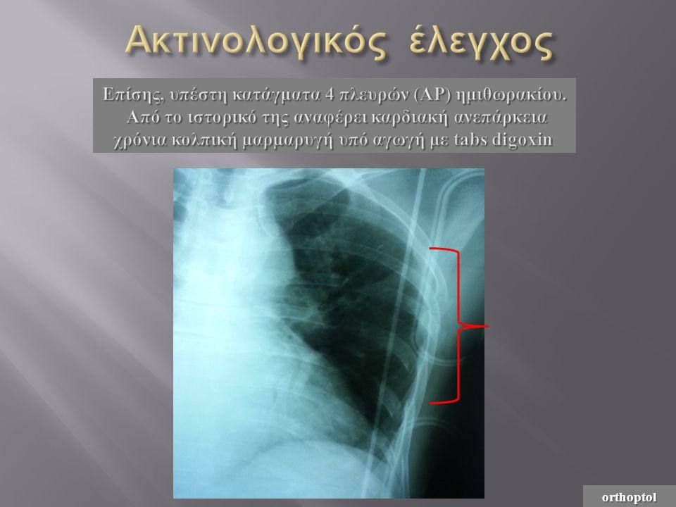 orthoptol