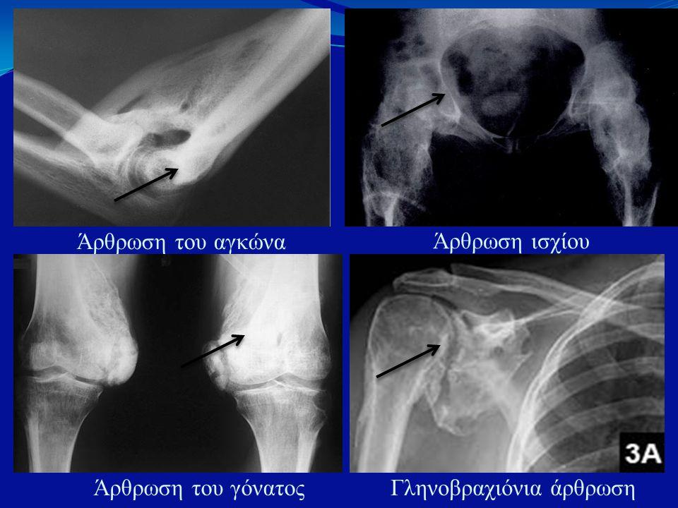 ΆΡΘΡΩΣΗ ΆΡΘΡΩΣΗ Άρθρωση του αγκώνα Άρθρωση ισχίου Άρθρωση του γόνατοςΓληνοβραχιόνια άρθρωση