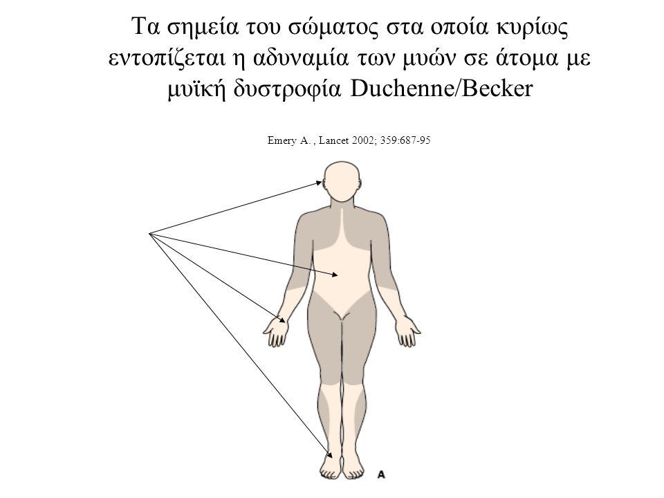 Τα σημεία του σώματος στα οποία κυρίως εντοπίζεται η αδυναμία των μυών σε άτομα με μυϊκή δυστροφία Duchenne/Becker Εmery A., Lancet 2002; 359:687-95