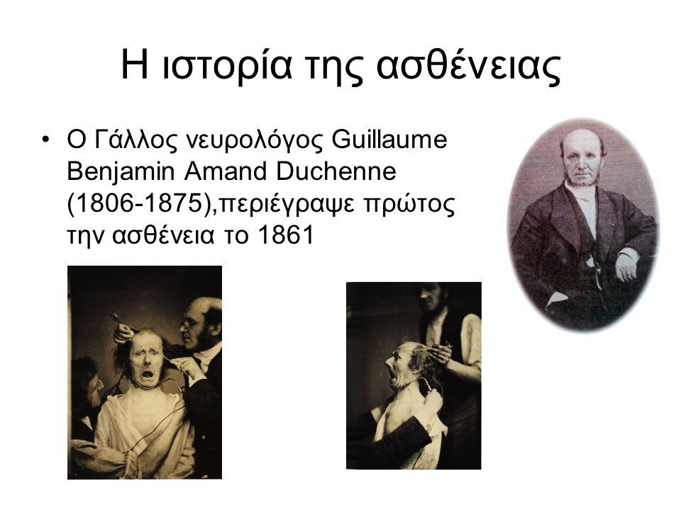 Η ιστορία της ασθένειας •Ο Γάλλος νευρολόγος Guillaume Benjamin Amand Duchenne (1806-1875),περιέγραψε πρώτος την ασθένεια το 1861