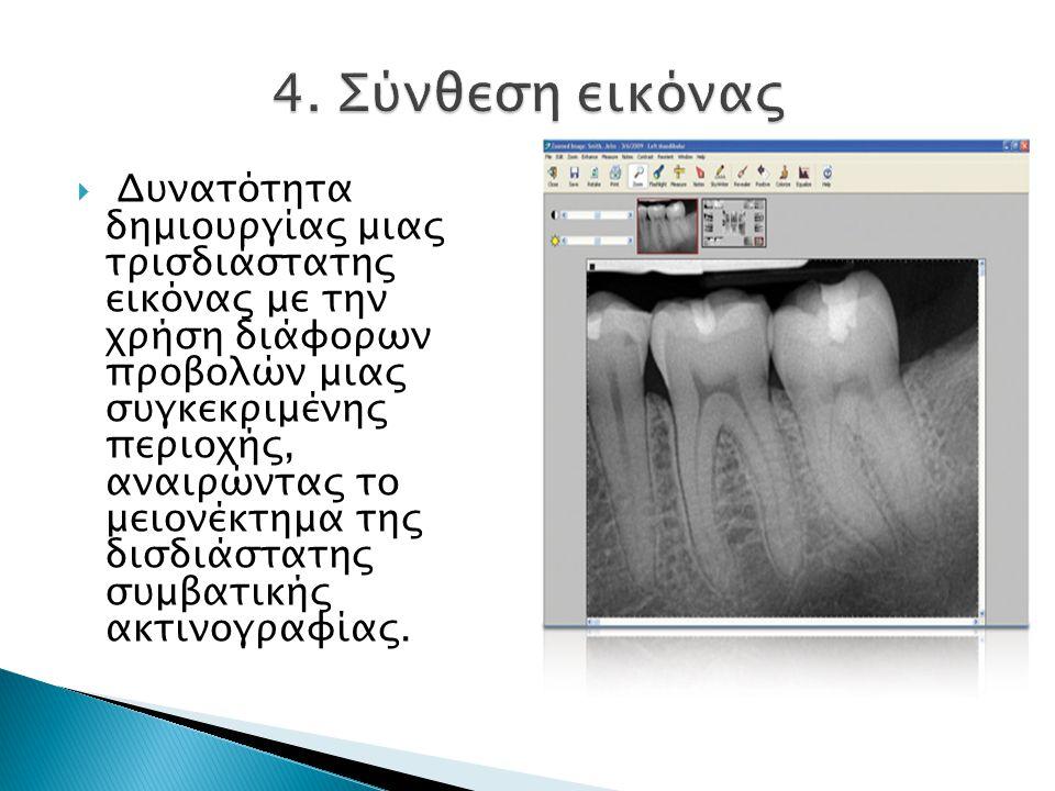  Δυνατότητα δημιουργίας μιας τρισδιάστατης εικόνας με την χρήση διάφορων προβολών μιας συγκεκριμένης περιοχής, αναιρώντας το μειονέκτημα της δισδιάστατης συμβατικής ακτινογραφίας.