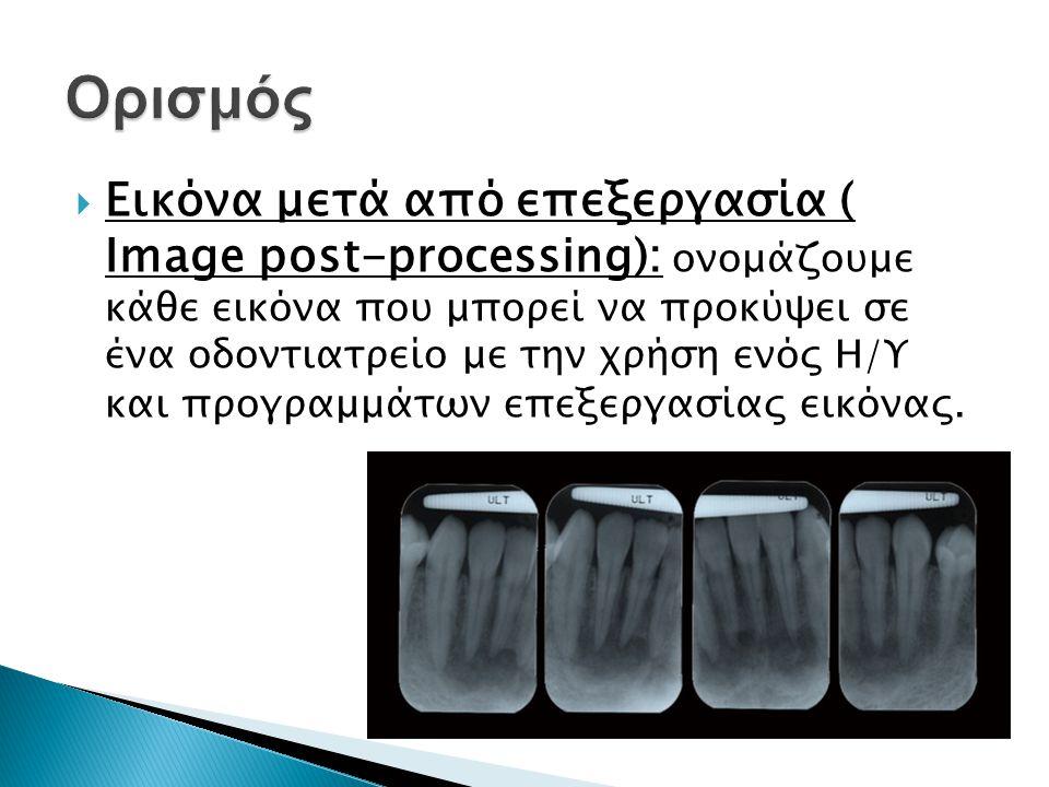  Εικόνα μετά από επεξεργασία ( Image post-processing): ονομάζουμε κάθε εικόνα που μπορεί να προκύψει σε ένα οδοντιατρείο με την χρήση ενός Η/Υ και προγραμμάτων επεξεργασίας εικόνας.