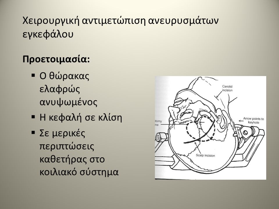 Χειρουργική αντιμετώπιση ανευρυσμάτων εγκεφάλου Προετοιμασία:  Ο θώρακας ελαφρώς ανυψωμένος  Η κεφαλή σε κλίση  Σε μερικές περιπτώσεις καθετήρας στο κοιλιακό σύστημα