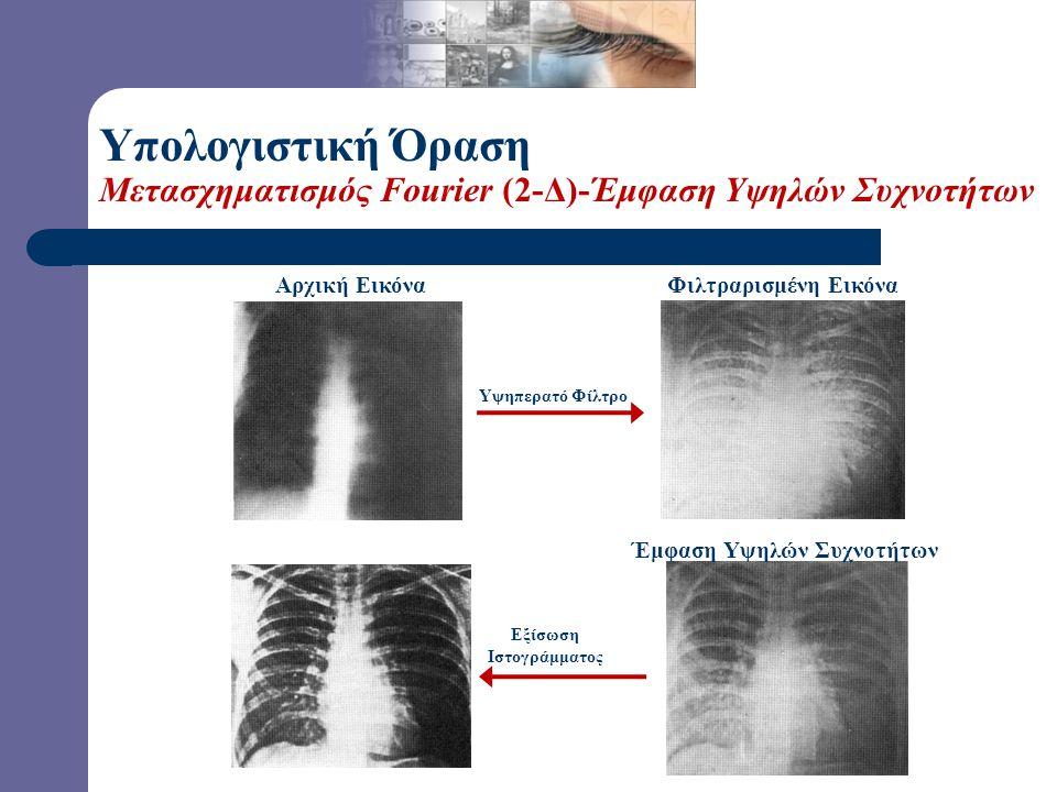 Αρχική Εικόνα Έμφαση Υψηλών Συχνοτήτων Υπολογιστική Όραση Μετασχηματισμός Fourier (2-Δ)-Έμφαση Υψηλών Συχνοτήτων