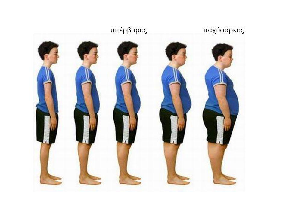 υπέρβαρος παχύσαρκος