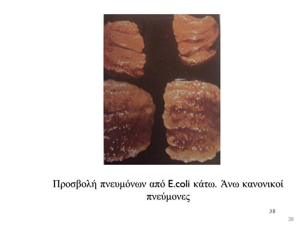 38 Προσβολή πνευμόνων από E.coli κάτω. Άνω κανονικοί πνεύμονες 38