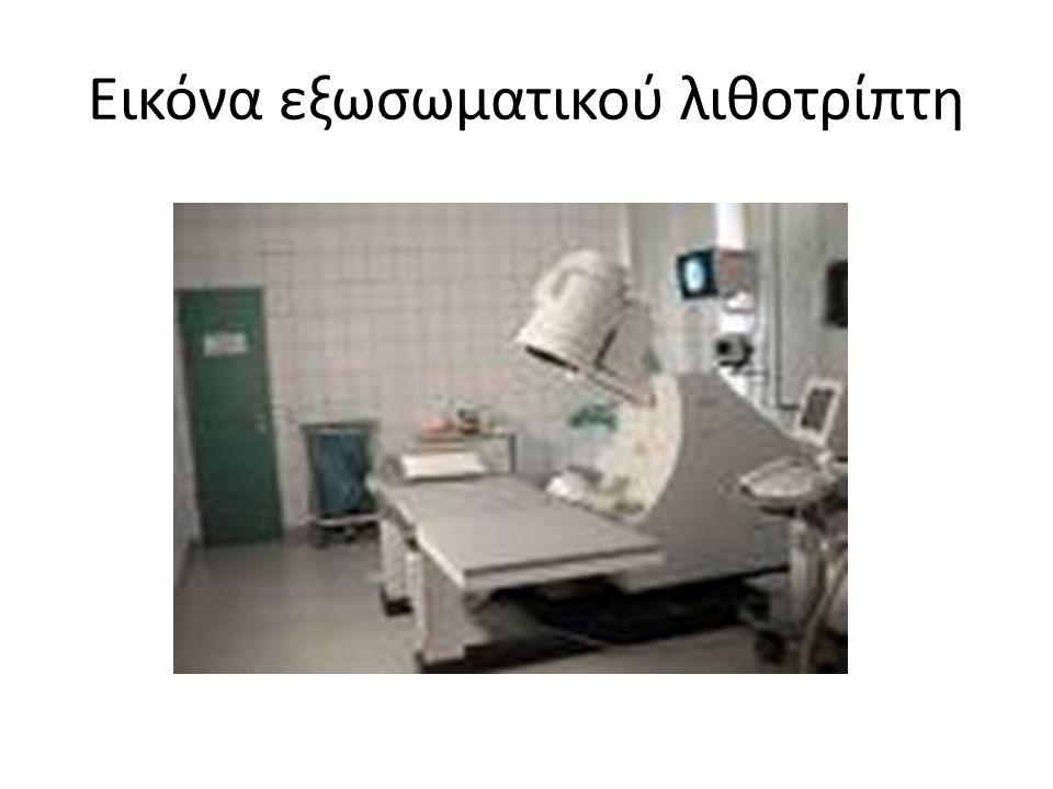 Εικόνα εξωσωματικού λιθοτρίπτη