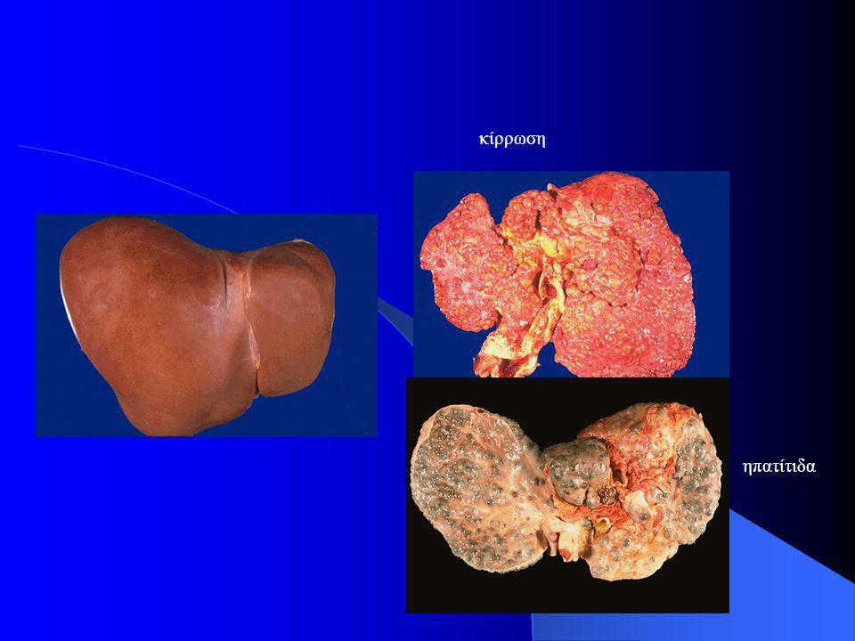 κίρρωση ηπατίτιδα