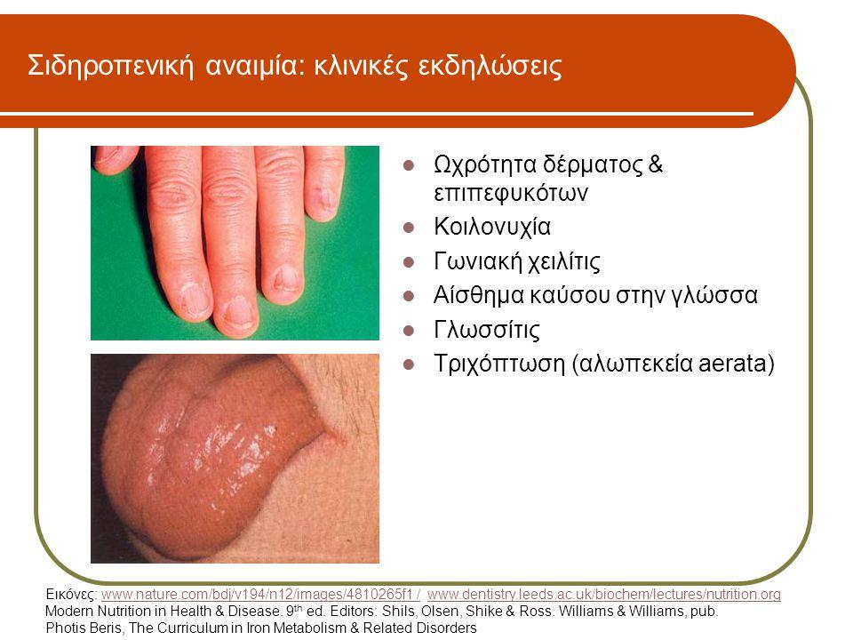 Σιδηροπενική αναιμία: κλινικές εκδηλώσεις  Ωχρότητα δέρματος & επιπεφυκότων  Κοιλονυχία  Γωνιακή χειλίτις  Αίσθημα καύσου στην γλώσσα  Γλωσσίτις