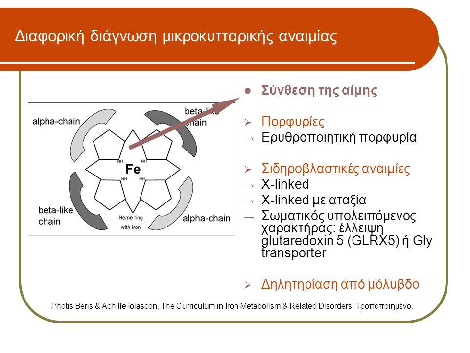 Διαφορική διάγνωση υπόχρωμης μικροκυτταρικής αναιμίας Σιδηροβλαστικές αναιμίεςΔηλητηρίαση με μόλυβδο Υποχρωμία, δακτυλιοειδείς ερυθροβλάστες, σίδηρος ορού: κ.φ.