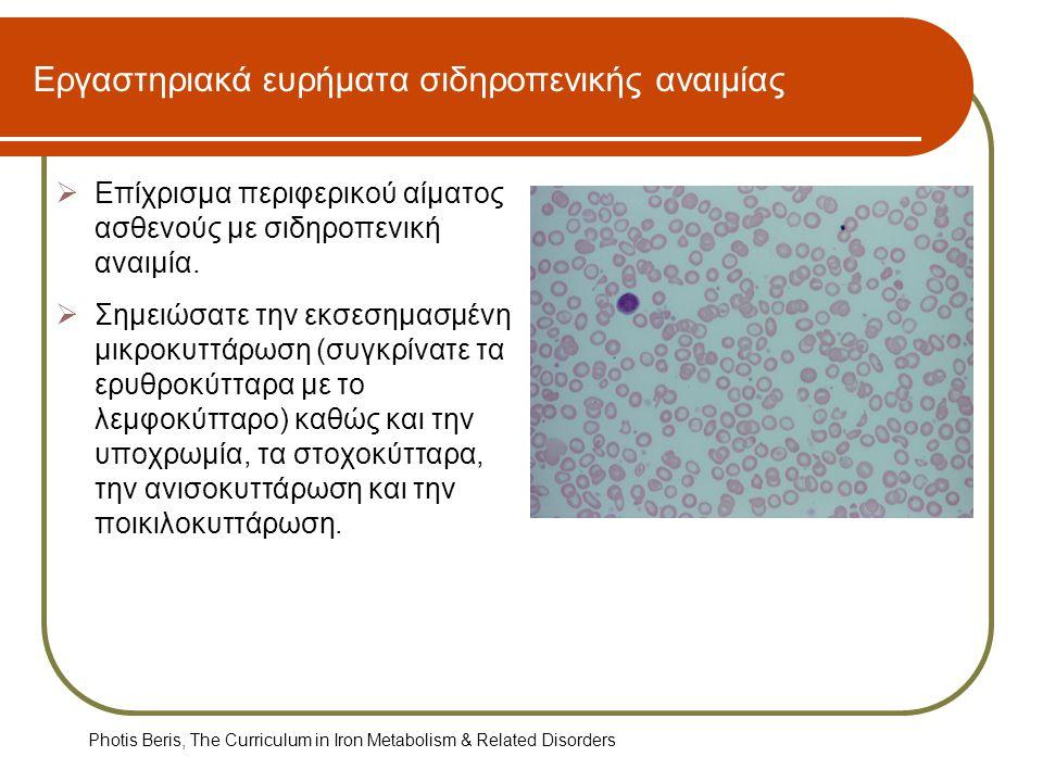 Εργαστηριακά ευρήματα σιδηροπενικής αναιμίας  Επίχρισμα περιφερικού αίματος ασθενούς με σιδηροπενική αναιμία.  Σημειώσατε την εκσεσημασμένη μικροκυτ