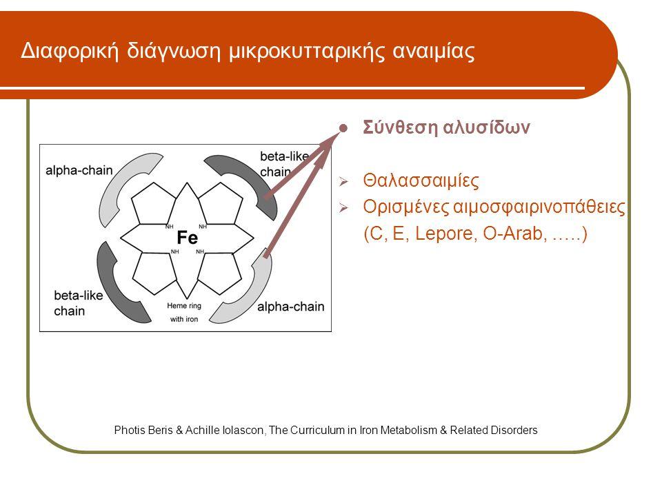 Διαφορική διάγνωση μικροκυτταρικής αναιμίας  Μεταβολισμός του σιδήρου  Επίκτητα αίτια σιδηροπενίας → Αυξημένες ανάγκες → Απώλεια αίματος → Μειωμένη πρόσληψη (κακή διατροφή) → Δυσαπορρόφηση σιδήρου  Συγγενείς διαταραχές του μεταβολισμού → Συγγενής υποτρανσφερριναιμία → Ασερουλοπλασμιναιμία → Divalent metal transporter 1 (DMT1) νόσος → Έλλειψη Matriptase-2 (IRIDA) → Νόσος φερροπορτίνης Photis Beris & Achille Iolascon, The Curriculum in Iron Metabolism & Related Disorders