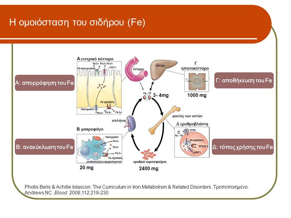 Εργαστηριακές δοκιμασίες για τη διερεύνηση της σιδηροπενίας  Σίδηρος ορού (Fe)  Τρανσφερρίνη (Tf)  Ολική σιδηροδεσμευτική ικανότητα (Total Iron Binding Capacity – TIBC)  Κορεσμός τρανσφερρίνης (transferrin saturation) = Fe / TIBC x 100  Unsaturated Iron Binding Capacity (UIBC)  Φερριτίνη ορού (ferritin)  soluble transferrin receptors (sTfR)  Ferritin index: sTfR / log ferritin Οι ανωτέρω δοκιμασίες επηρεάζονται από τη φλεγμονή.